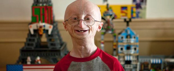 overview of progeria