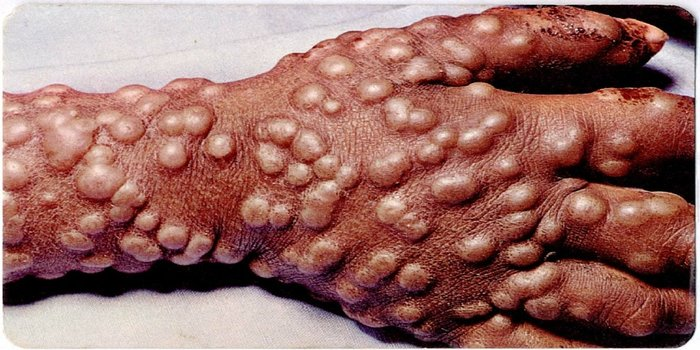 Smallpox Disease Photos and Images--Educate Staff and ...