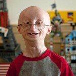 An Overview Of Progeria